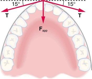 <b>Figure 4.38</b> Braces are used to apply forces to teeth to realign them. Shown in this figure are the tensions applied by the wire to the protruding tooth. The total force applied to the tooth by the wire, F_{app}, points straight toward the back of the mouth.
